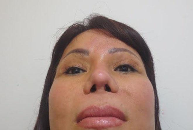 Người phụ nữ có chiếc mũi xơ cứng, lệch vẹo sau khi nâng mũi bằng sụn cứng.