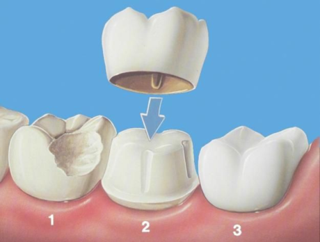 Bọc răng sứ không mài giá 1.000 đồng tại bệnh viện thẩm mỹ JW - 2