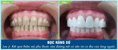 Bọc răng sứ không mài giá 1.000 đồng tại bệnh viện thẩm mỹ JW - 6