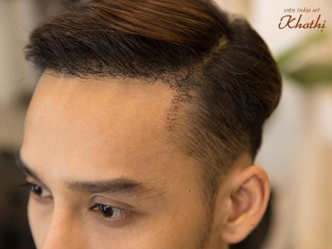 Giải pháp này được Khơ Thị chuyển giao từ Tập đoàn DHI của Vương quốc Anh. Ưu điểm của cấy tóc tự thân gồm: không phẫu thuật, không đau và để lại sẹo; không cạo tóc trước khi cấy; không mất thời gian nghỉ dưỡng; phục hồi tóc chắc khỏe với mật độ cao; tóc mọc đều và tự nhiên; phù hợp với rụng tóc, hói đầu, tóc thưa mỏng; ngăn ngừa rụng tóc trở lại; thời gian thực hiện nhanh chóng. Viện thẩm mỹ cam kết hiệu quả.