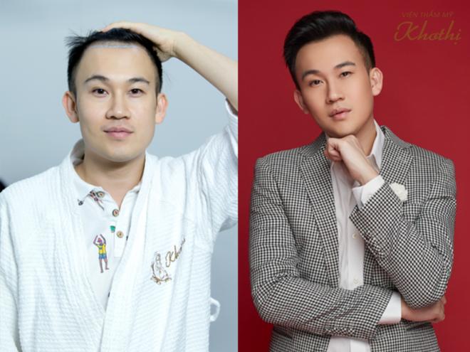 Ca sĩ Dương Triệu Vũ hài lòng với mái tóc dày dặn, khỏe mạnh sau 4 tháng cấy tóc tự thân. Anh cho biết không còn ngại ngùng, thiếu tự tin mỗi khi hát trước công chúng.