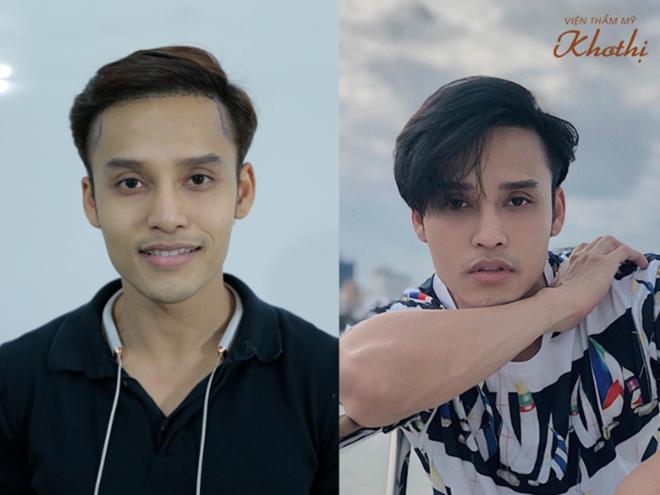 Chuyên gia trang điểm Kuny Lee đã tìm ra giải pháp phục hồi mái tóc dày, chắc khỏe. Cấy tóc tự thân có thể khắc phục hiệu quả tình trạng rụng tóc nhiều hay hói đầu, nhẹ nhàng mà không ảnh hưởng sức khỏe.