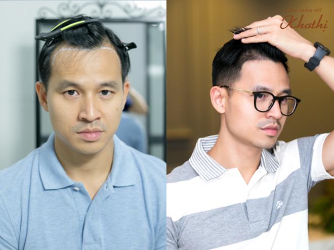 Doanh nhân Sơn Đoàn sau ba tháng cấy tóc tự thân Hair Balance. Công nghệ này sử dụng những nang tóc khỏe mạnh được bóc tách và lấy từng gốc ra khỏi da đầu, sau đó cấy vào vùng da bị thiếu tóc một cách chính xác.