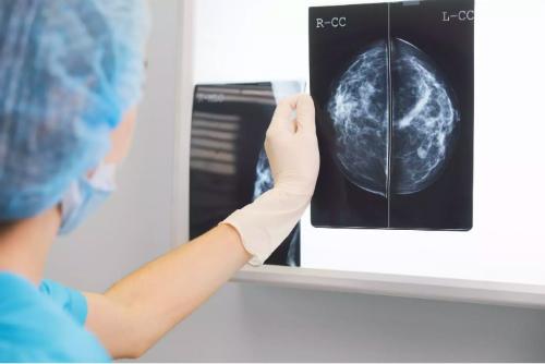 Một người hiến tạng, ba người nhận chết vì lây ung thư vú