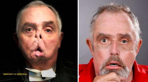Maurice trước và sau khi ghép mặt. Ảnh: Đại học Montreal.