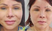 Nữ Việt kiều phải thở bằng miệng sau 6 lần nâng mũi thất bại