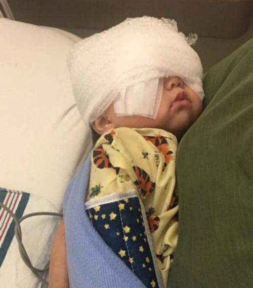 Mehlani phải phẫu thuật lúc năm tháng tuổi để tránh mù lòa. Ảnh: Twitter.