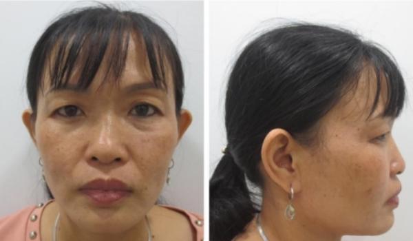 Gương mặt được nhận xét lắm khuyết điểm của chị Hoa.