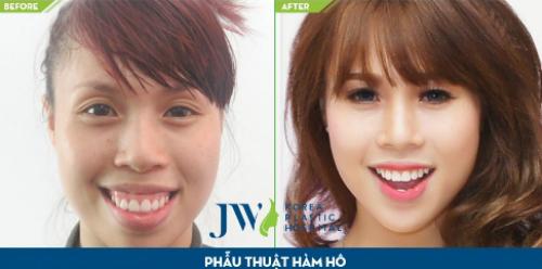 phau-thuat-hai-ham-chinh-ho-mom-toan-dien-tai-jw-xin-edit-6