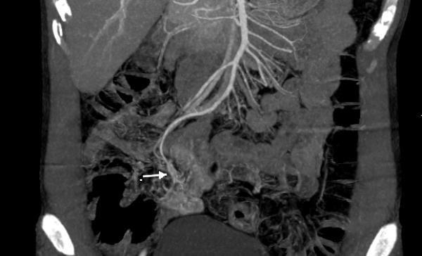 Búi dị dạng mạch máu trên phim CT của bệnh nhân.