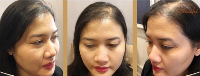 Làm thế nào để duy trì và nuôi dưỡng tóc dày, khỏe đẹp là băn khoăn của nhiều chị em.