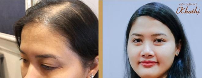 Kết quả sau 6 tháng thực hiện cấy tóc tự thân tại Viện thẩm mỹ Khơ Thị.
