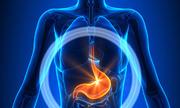 6 bệnh ung thư người béo phì dễ mắc
