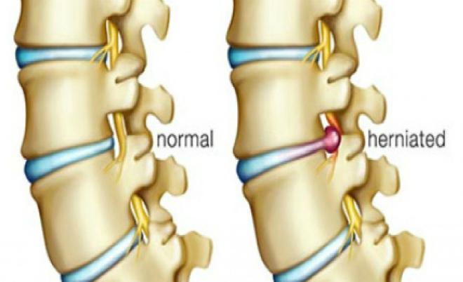 Đĩa đệm bình thường (bên trái) và đĩa đệm bị thoát vị (bên phải). Ảnh: orthoadc