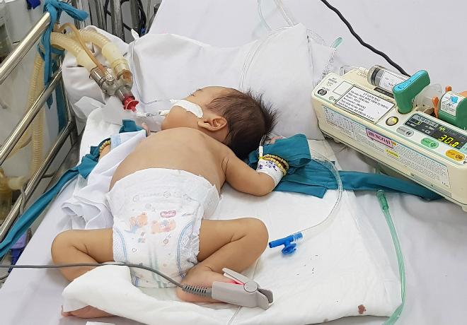 Trẻ tay chân miệng bệnh nặng điều trị tại phòng cấp cứu Khoa Nhiễm, Bệnh viện Nhi đồng 1 (TP HCM) ngày 5/10. Ảnh: Lê Phương.