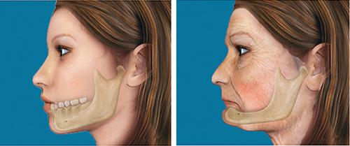 Tiêu xương khiến người mất răng trông già hơn so với tuổi thật.