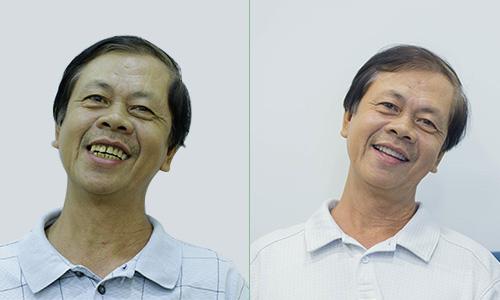 Khách hàng trước và sau khi điều trị mất răng nguyên hàm bằng trồng răng Implant All-on-4 tại Dr. Care.