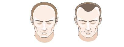 Nam giới thường rụng tóc theo 2 kiểu: chữ U - chữ M; mất đường tóc trán.