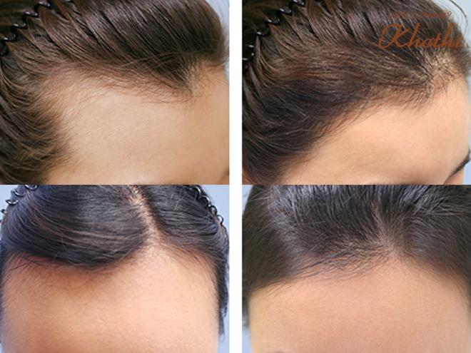 Gợi ý phái đẹp những cách thoát ám ảnh rụng tóc, hói đầu - ảnh 3
