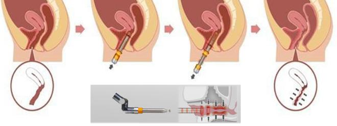 Công nghệ Fotonađược áp dụng nhiều vì ưu điểm thu hẹp và trẻ hóa âm đạo.