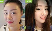 Chuyên gia cảnh báo tác hại khi dùng kẹp nâng cao mũi