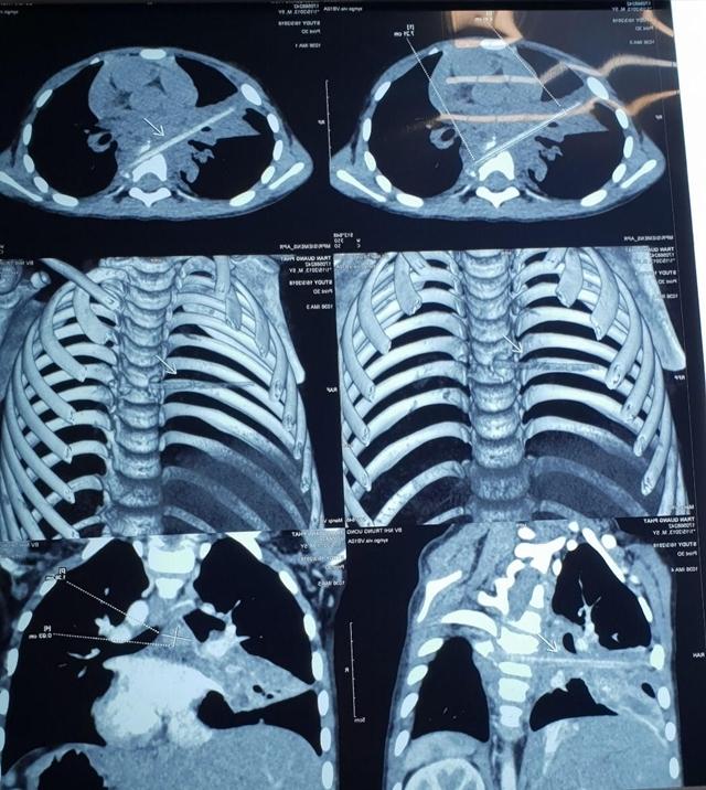 Hình ảnh que nứa dài 9 cm đâm xuyên phổi và đốt sống bệnh nhi.