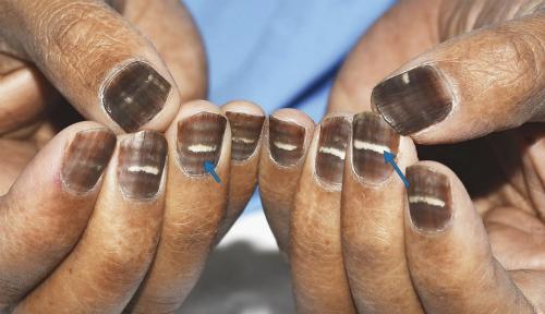 Móng tay người đàn ông 42 tuổi chuyển màu do hóa trị. Ảnh: LS.
