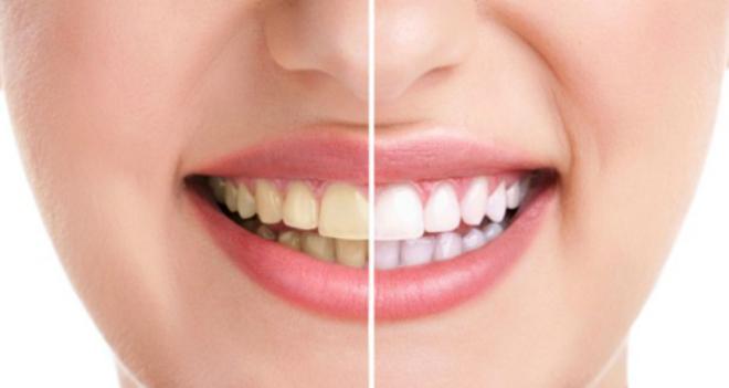 Hàm răng ngả màu vàng do thói quen sinh hoạt.