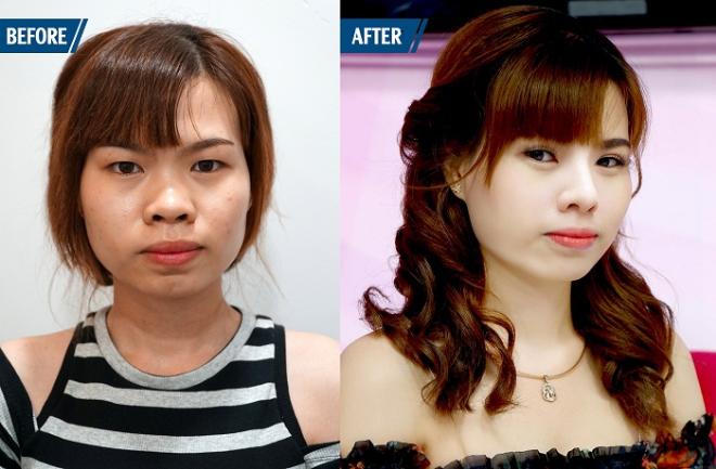 Cô gái nâng mũi khiến diện mạo thay đổi.