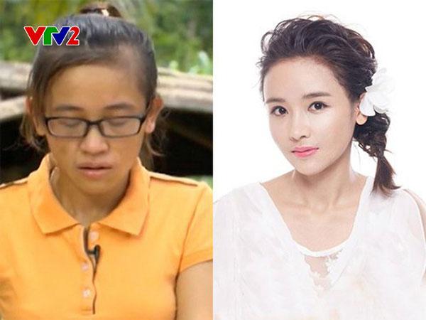 Nhan sắc trước và sau khi tham gia Change Life của Lê Thị Thùy.