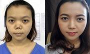 Những trường hợp khó trong phẫu thuật thẩm mỹ mũi