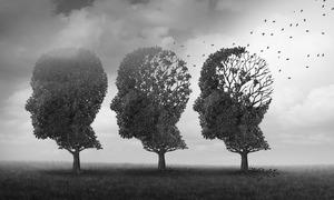 Stress khiến não bị teo nhỏ