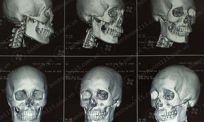 Hình CT scan sọ não của nữ bệnh nhân 25 tuổi. Ảnh bệnh viện cung cấp.