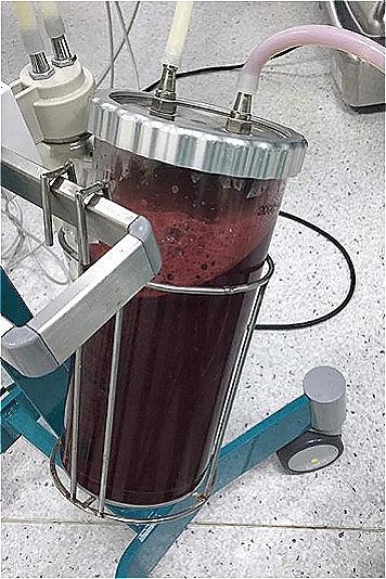 1000 ml máu được lấy ra khỏi ổ bụng bệnh nhân. Ảnh: Bệnh viện cung cấp.