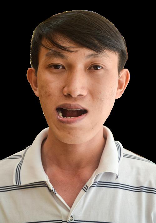 Hơn 27 năm Nguyễn Duy Phương luôn ngoại hình vì không thể khép miệng, ăn nhai khó khăn.