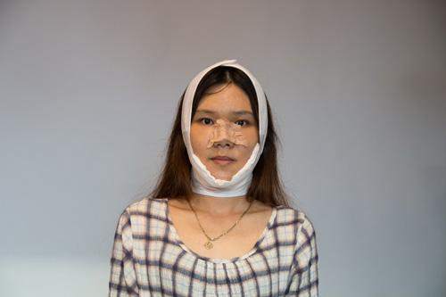 Hoàng Oanh đang trong quá trình hồi phục sau phẫu thuật.