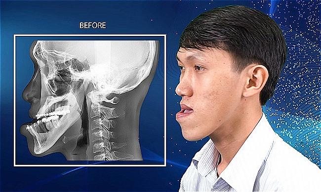 Ca mổ cắt dời hàm mặt giúp chàng trai Ninh Thuận lột xác ngoại hình/ Chàng trai Ninh Thuận lột xác diện mạo sau ca phẫu thuật hàm mặt