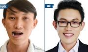 Ca mổ hàm mặt giúp chàng trai Ninh Thuận 'lột xác' ngoại hình