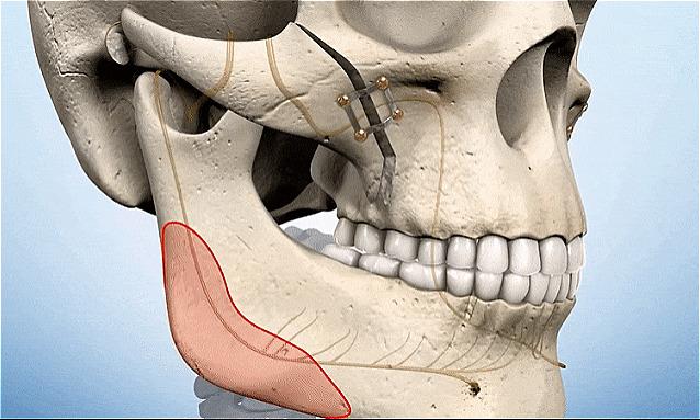 Hình ảnh mô phỏng một trong các phương pháp thẩm mỹ hàm mặt mà Hoàng Oanh thực hiện.