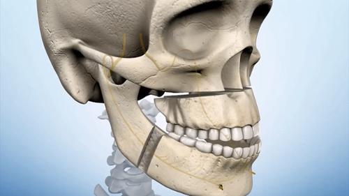 Hình ảnh mô tả cắt hàm trên dưới chữa hô.