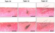 Lớp da nhân tạo cấy ghép cho người bị bỏng hoặc rụng tóc
