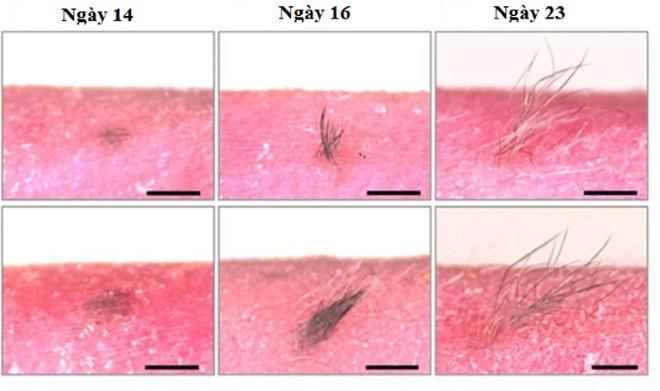 Làn da được cấy ghép trảiqua các chu kỳ tăng trưởng tóc bình thường. Ảnh: CG