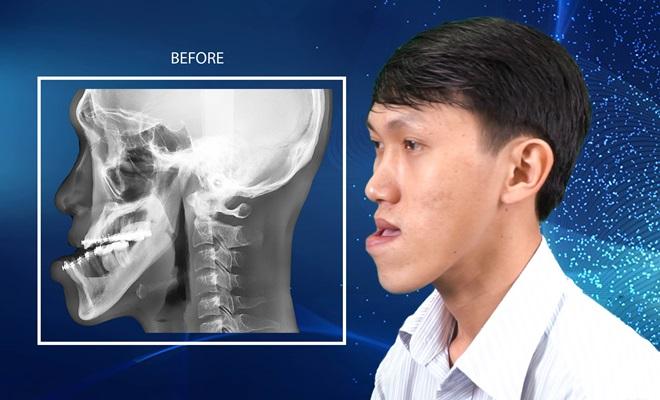 Cuộc sống viên mãn của chàng trai Ninh Thuận sau phẫu thuật thẩm mỹ