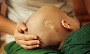 Cậu bé ung thư và nguyện cầu 'con không đau đớn' của mẹ