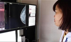 Phụ nữ Việt nên khám sàng lọc ung thư vú từ 30 tuổi thay vì 45