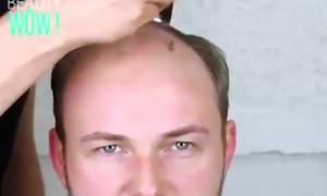 5 kiểu tóc xua tan nỗi ám ảnh hói đầu của phái mạnh