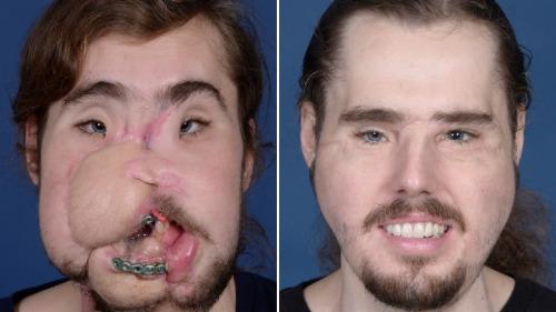 Khuôn mặt của Cameron sau khi bị súng hủy hoại (trái) và sau khi được phẫu thuật cấy ghép. Ảnh: CNN.