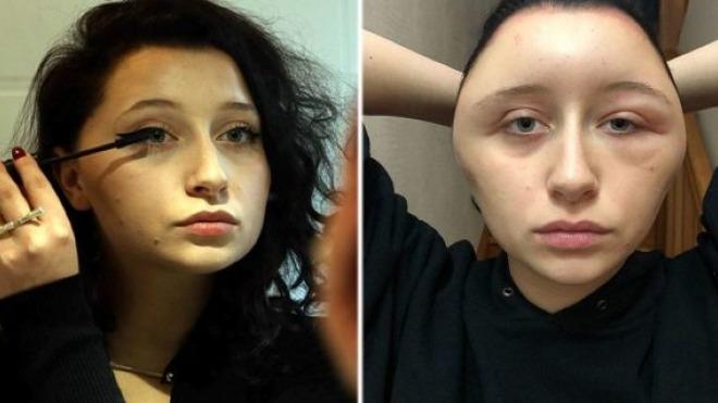 Estelle trước khi nhuộm tóc (trái) và sau khi dị ứng khiến mặt sưng phồng biến dạng (phải). Ảnh: FN