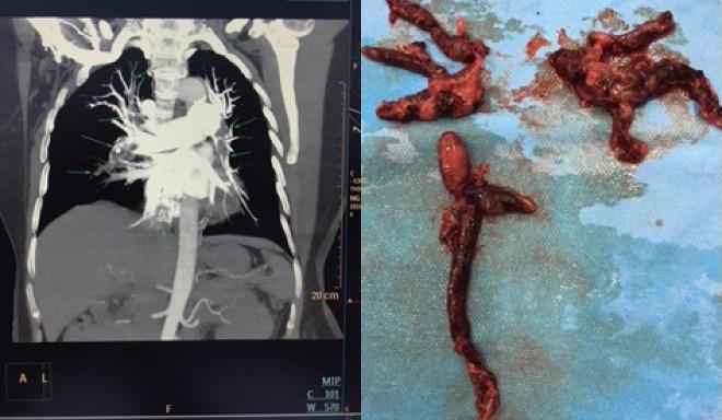 Huyết khối lấp trong các mạch máu bệnh nhân được phẫu thuật đưa ra ngoài. Ảnh bác sĩ cung cấp.