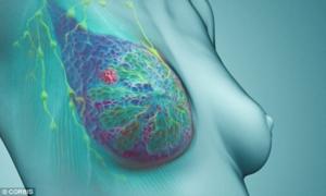 Ngực bị biến dạng do đắp lá chữa ung thư vú